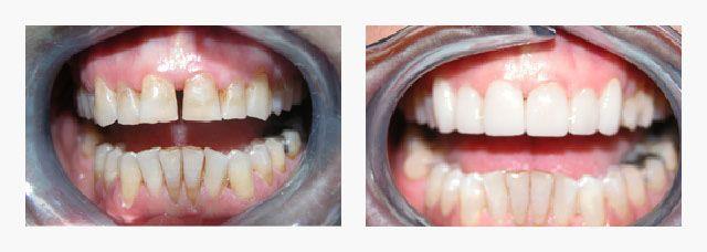 Veneers Dentist Parramatta